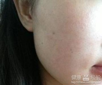 脂溢性皮炎和痤疮有关系吗