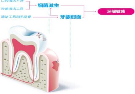 牙龈敏感如何刷牙 牙膏牙刷怎么选